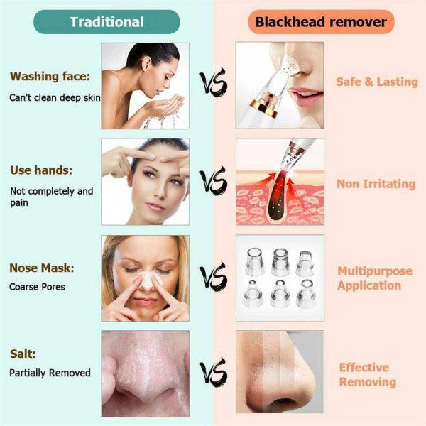 Electric Facial Skin Care Pore Blackhead Remover Cleaner Vacuum Acne Cleanser (7)