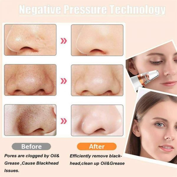 Electric Facial Skin Care Pore Blackhead Remover Cleaner Vacuum Acne Cleanser (9)