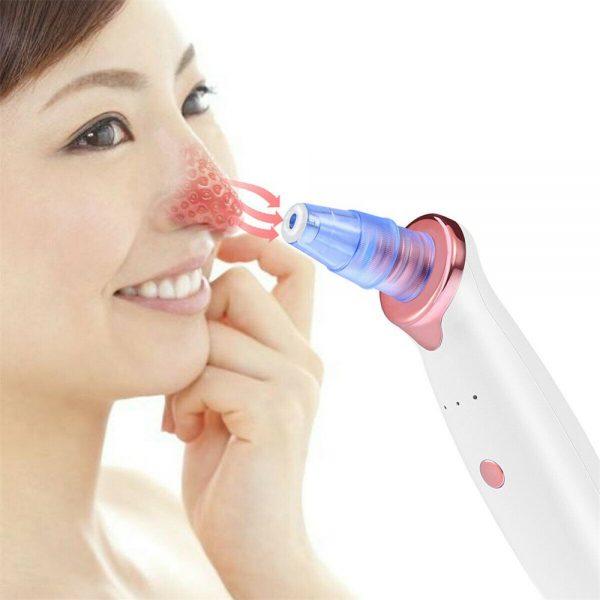 Electric Skin Care Facial Pore Cleanser Blackhead Acne Vacuum Cleaner Remover (4)