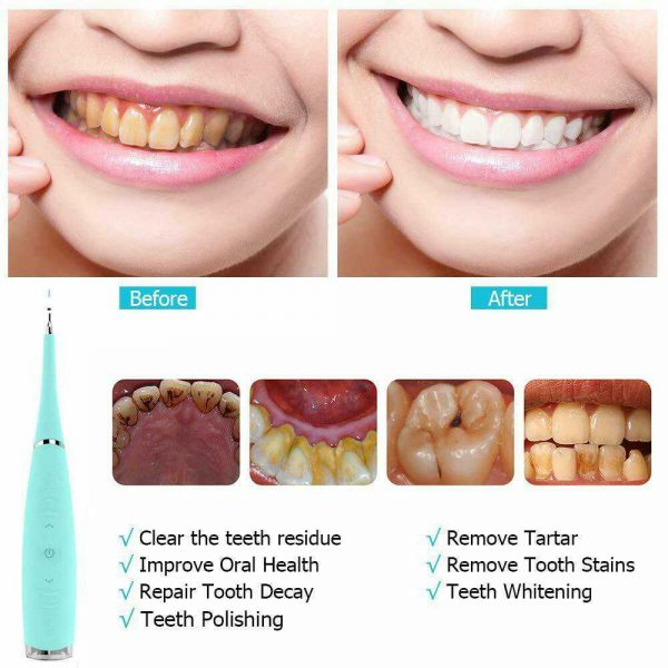 Electric Ultrasonic Sonic Tooth Cleaner Teeth Stains Tartar Remover Whitening (4)